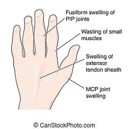 artritisk hand, visande, anklagar