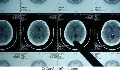 arts, studeren, hoofd, pet/ct, scanderen