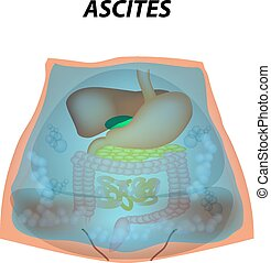 Ascites Free fluid in the abdominal cavity. Infographics. ...