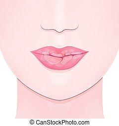 asciutto, fesso, labbra