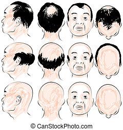 Asian Male Baldness Pattern - An image of a asian male ...