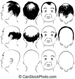 Asian Male Baldness Pattern - An image of a asian male...