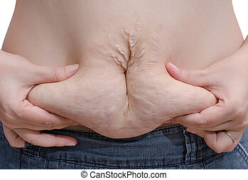 Asian woman showing her stretch marks