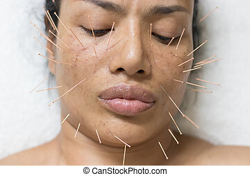 Asian women 40 years old acupuncture acupuncture on face to maintain health and skin to be healthy, firm skin.
