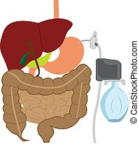 Aspire Assist for lose weight therapy vector illustration