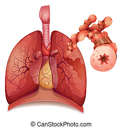 Asthma - Illustration showing the inflamation of the...