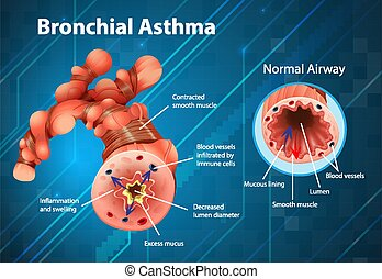 Asthma inflamed bronchial tube illustration