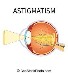 astigmatism., イラスト