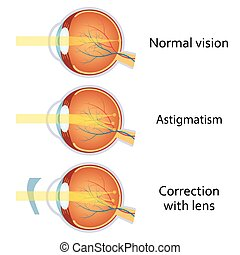 astigmatism, cilíndrico, corrected, lens.