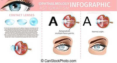 Astigmatism Correction with Contact Lenses Banner - Medical...