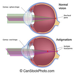Astigmatism, a common eye defect, eps10