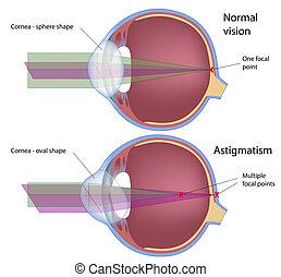 Astigmatism, eps10 - Astigmatism, a common eye defect, eps10