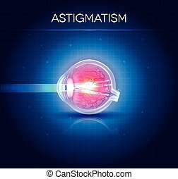 Astigmatism eyesight disorder. Anatomy of the eye, cross section.