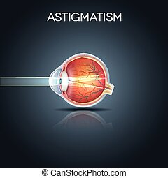 Astigmatism. Eyesight problem, blurred vission. Anatomy of ...