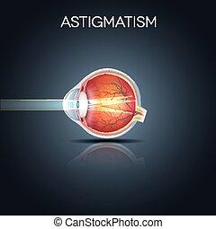 Astigmatism. Eyesight problem, blurred vission. Anatomy of ...