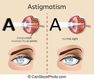 Astigmatism Medical Vector Diagram or Scheme