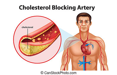 Ateriosclerosis - Illustration showing the process of ...