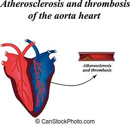 Atherosclerosis illustration high cholesterol blood clot
