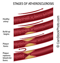 Atherosclerosis, eps8 - Stages of atherosclerosis