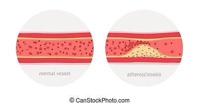 atherosclerosis, kärl