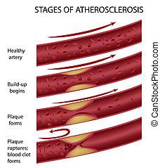 atherosklerose, eps8