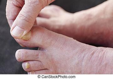 Athletes foot dry skin on man