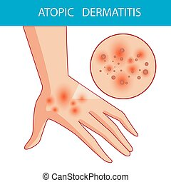 atopic dermatis. The person scratches the arm on which is...