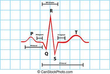 Atrial And Ventricular Diagram - Normal Atrial And...