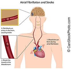 atrial, fibrilación, y, golpe