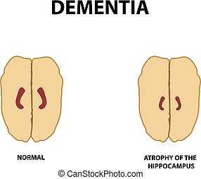 Atrophy of the hippocampus. Dementia. Alzheimer's disease....