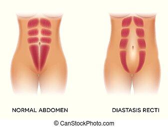 auch, trennung, bekannt, diastasis, recti, abdominal