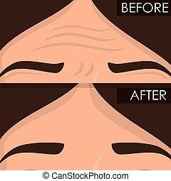 avant, femme, traitement, après, peau