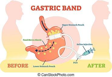 avant, gastrique, anatomique, illustration, bande, vecteur, diagramme, monde médical, scheme., après