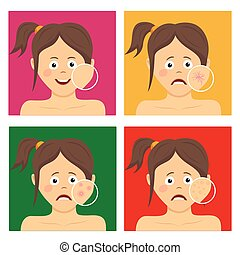 Avatar set for skincare infographic. Teenager girl with facial skin problems
