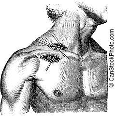 axillary, illustration., 辞書, ligation, 型, -, 1885., 刻まれる, 動脈...
