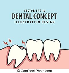 azul, dental, impactou, dentro, gengiva, dente, experiência., vetorial, ilustração, sob, concept., inflamação