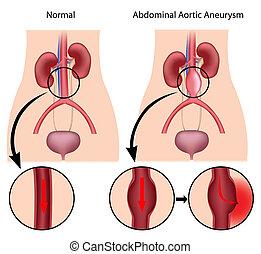 břišní, aortic, eps8, aneurysm
