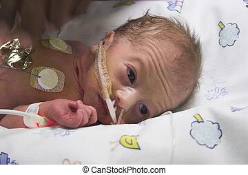 Baby care - one day old premature bbaby boy in ICU