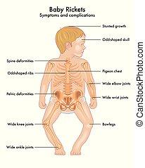 baby rickets - medical vectorial illustration of symptoms ...
