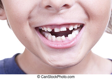 Baby teeth - Closeup of young child smiling and showing his...