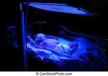 Newborn baby with neonatal jaundice and high bilirubin hyperbilirubinemia under blue UV light for phototheraphy.