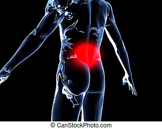 Back Ache - Anatomy - Medical Illustration. 3D rendered...