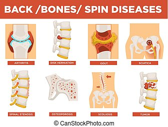 Back, bones and human spin diseases explanation vector. Disk...