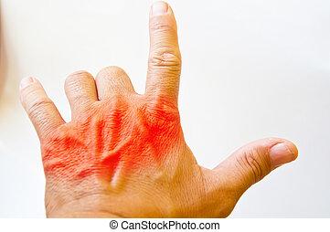 Back hand pain
