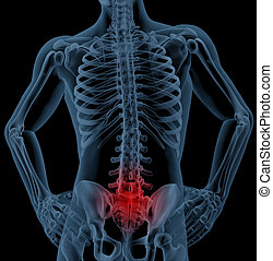 Back pain - 3D render of a skeleton highlighting pain in the...