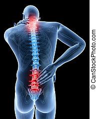 back, pijnlijk, hals