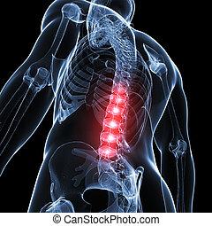 back, pijnlijk