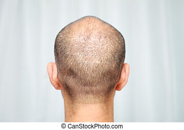 thin hair -  back shot of a male head of thin hair