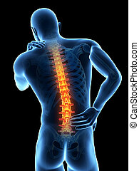 Backache - A man having acute pain in the back