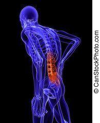 backache illustration - 3d rendered medical x-ray ...